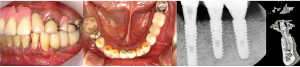 Condition of dental implant after 16 weeks surgery
