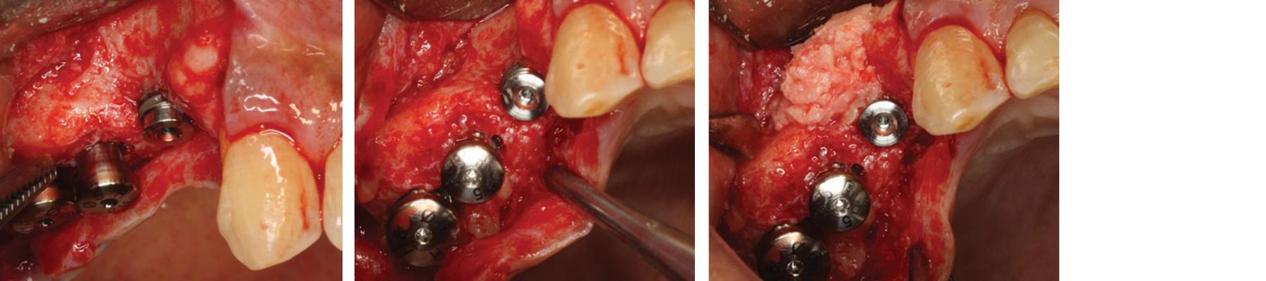 Alveolar bone augmentation process