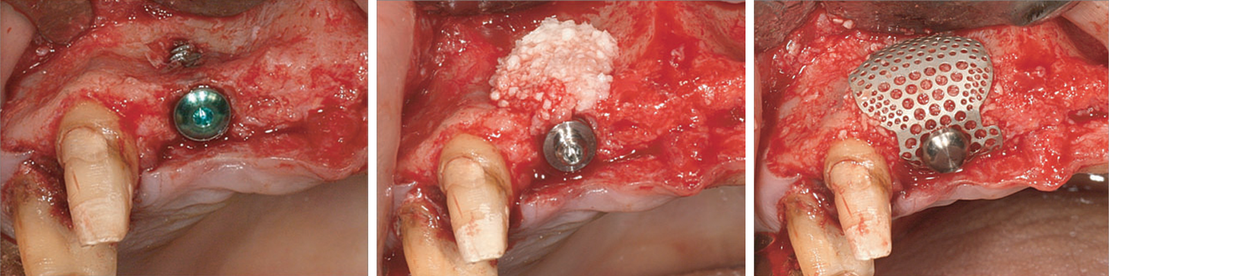 Post implant placement. After connecting the height on the implant fixture. SmartBuilder type II
