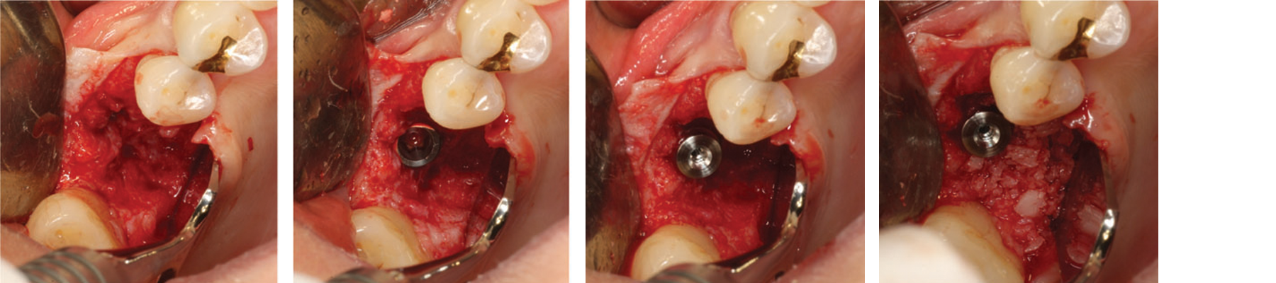 Intra-operative view.