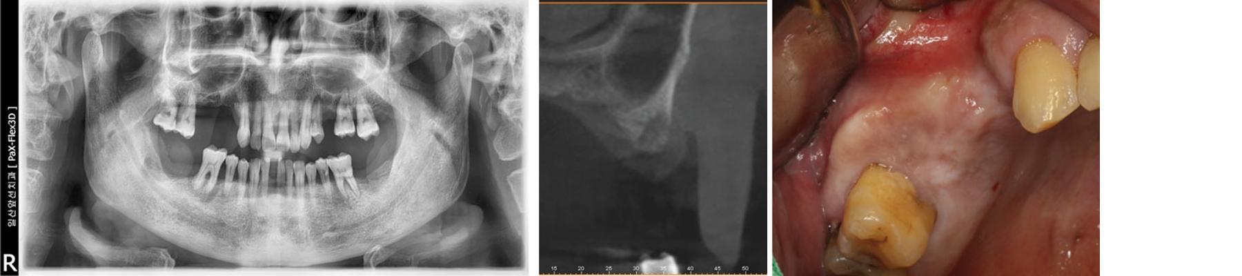 Pre-operative radiograph & Intra-oral view