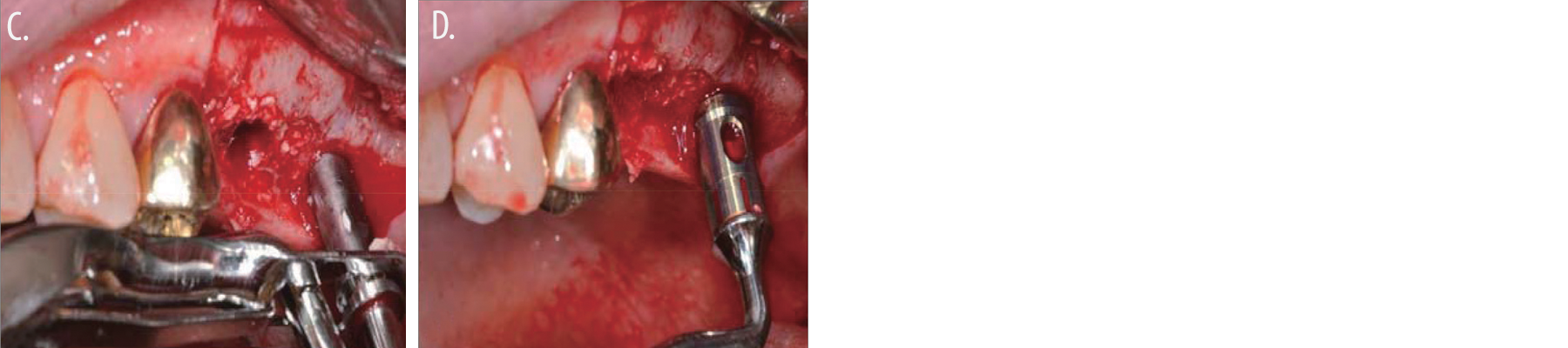 Fig 1. filling the hole with bone graft material using the bone carrier Fig 2. bone condenser with the stopper.