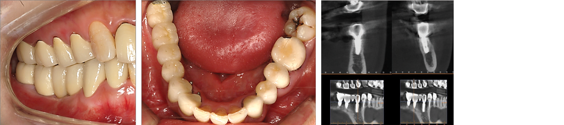 Final prosthesis was placed 14 weeks after implant placement.