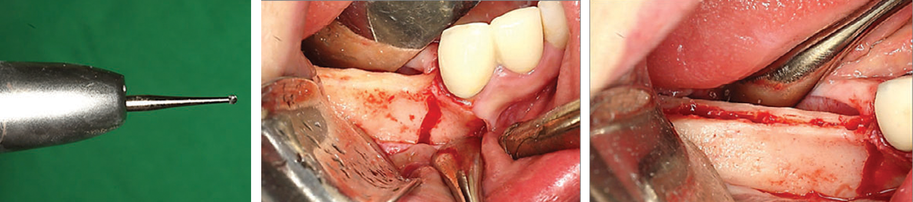 Intra-operative view Full thickness mucoperiosteal flap was elevated with one vertical incision on the mesial side.