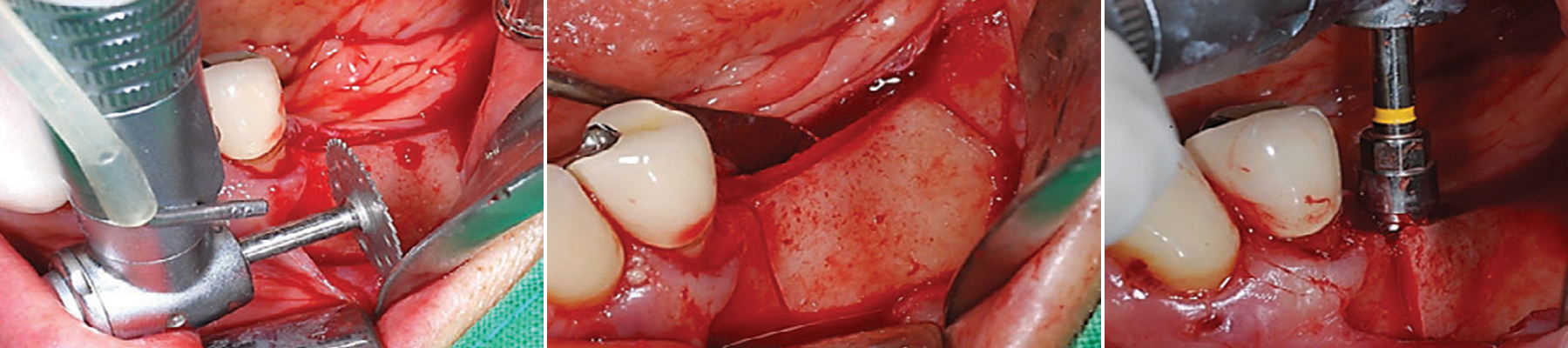Intra-operative view