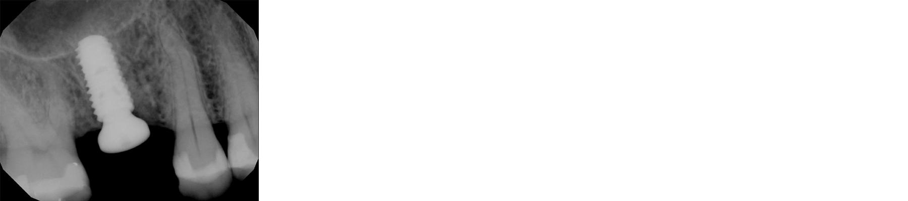 Post-operative-periapical-radiograph