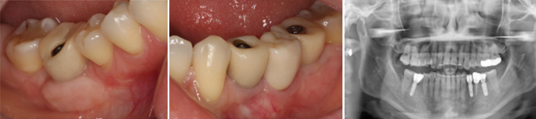 Prosthetic state and panoramic view of 2 years after implant placement