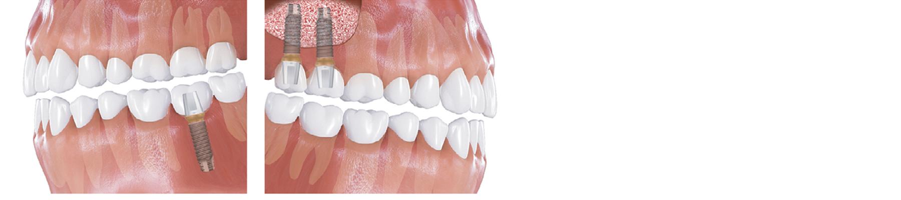Lower molar & Maxillary sinus