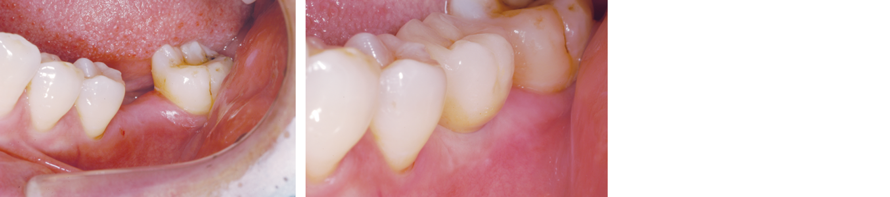 Molar implant before and after