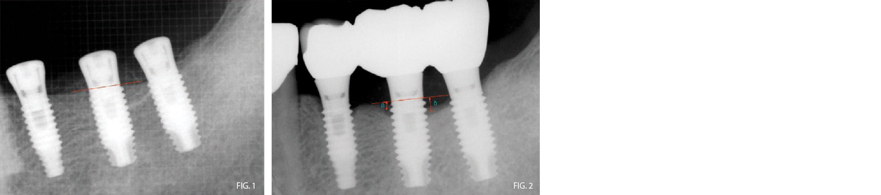 Periimplant Tissue in dental Implants