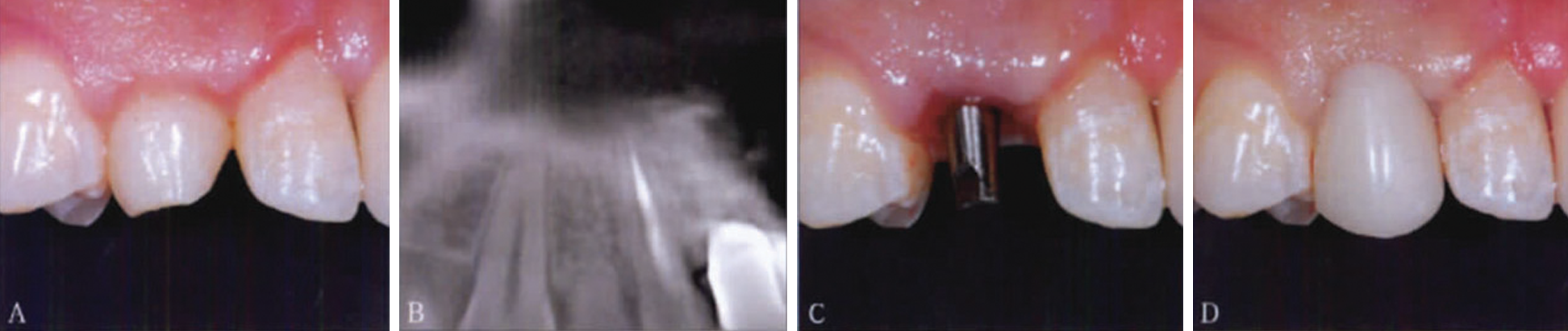 Immediate restoration implant with mini-implant of case 1.