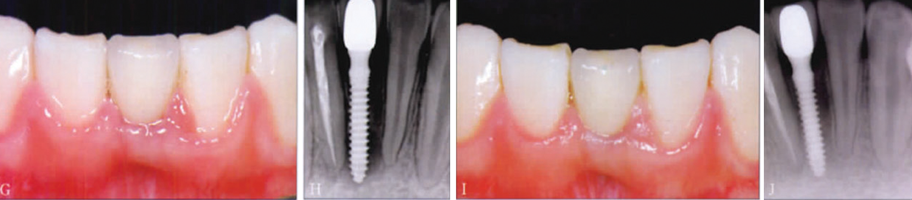 Immediate restoration implant with mini-implant of case 2.