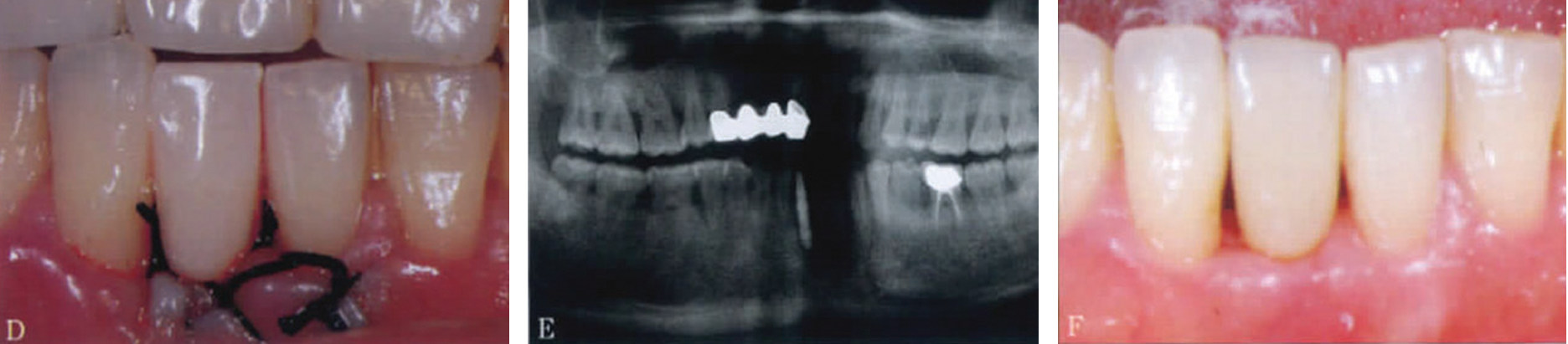Immediate restoration implant with mini-implant of case 3.