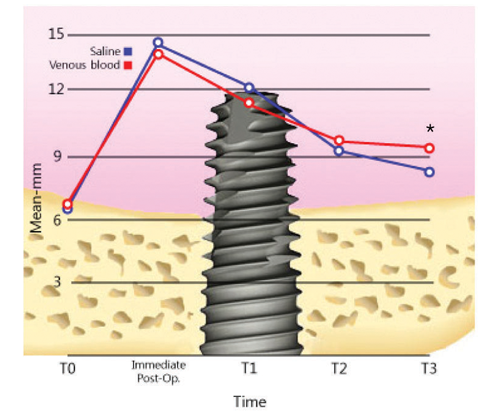 Schematic drawing showing the measurement of intra-sinus newly formed bone