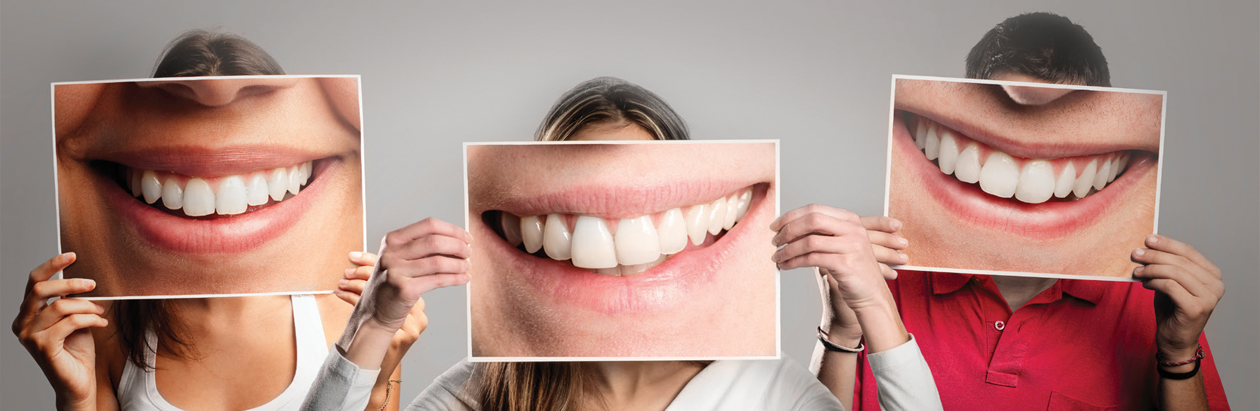 What dental implant can do for you brochure