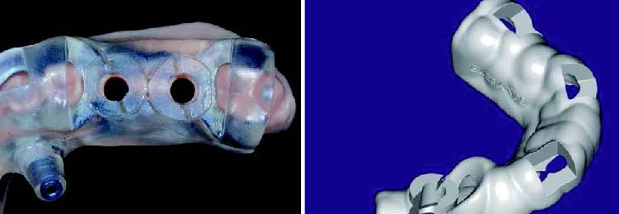 Two images of two different types of implant templates for guided surgery