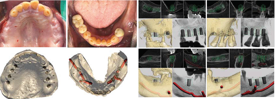 Pre-op intra-oral scans and photos