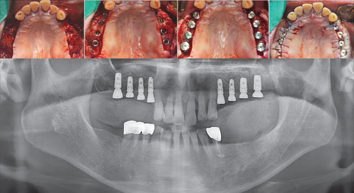 Intra oral images and radiograph after surgery