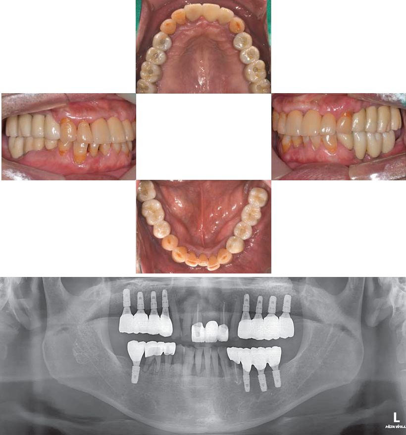 Intra oral images post op 1 year after